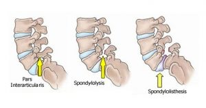 Isthmic Spondylolisthesis
